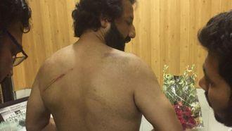 Kadafi Zaman og skadene han fikk etter politivolden.