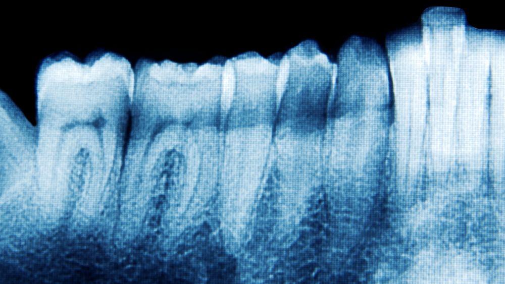 En ny studie styrker hypotesen om at tannsykdommen paradentose kan være en av årsakene til alzheimers. Nå er både en medisin og en vaksine mot paradentose i ferd med å testes ut.