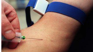 Tusenvis av blodprøver skal avsløre konsekvenser av luftforurensing