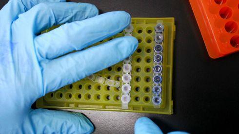 Medisinsk gjennombrudd: Hiv-positiv mann skal være kurert