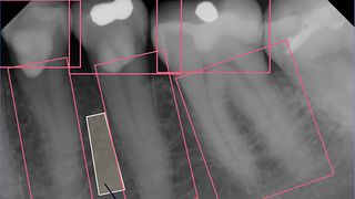 Røntgenbildene fra tannlegen kan avsløre benskjørhet