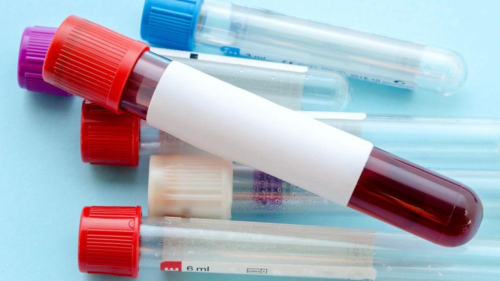 Forskerne har ved hjelp av Kreftregisteret identifisert 100 personer som senere har blitt rammet av tarmkreft. De skal se på blodprøvene fra personene som senere ble syke – og kartlegge om de har noe til felles.