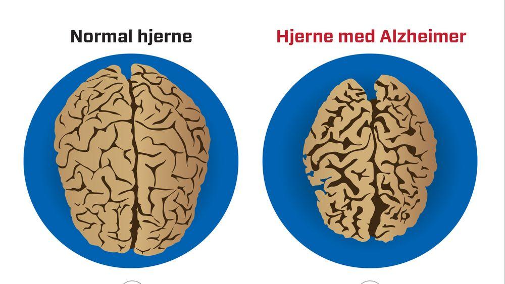 Pusten er med på å rense hjernen og kan ha betydning for sykdommer som Alzheimer og Parkinson.