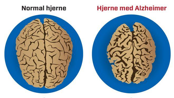 Norske forskere: Pusterytmen kan ha sammenheng med Alzheimers