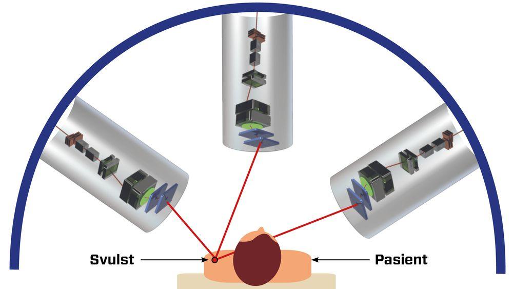 Prinsippet: Tre strålekanoner, kalt Particle Beam Guiding Tubes, bestråler samme punkt i tumor til enhver tid, med individuelle styringssystemer for koordinert innretning mot bevegelig mål. De tre strålekanonene er her tegnet halvveis gjennomsiktige, for å vise konfigurasjonen av superledende magneter, som skal gi presis og sikker stråling.