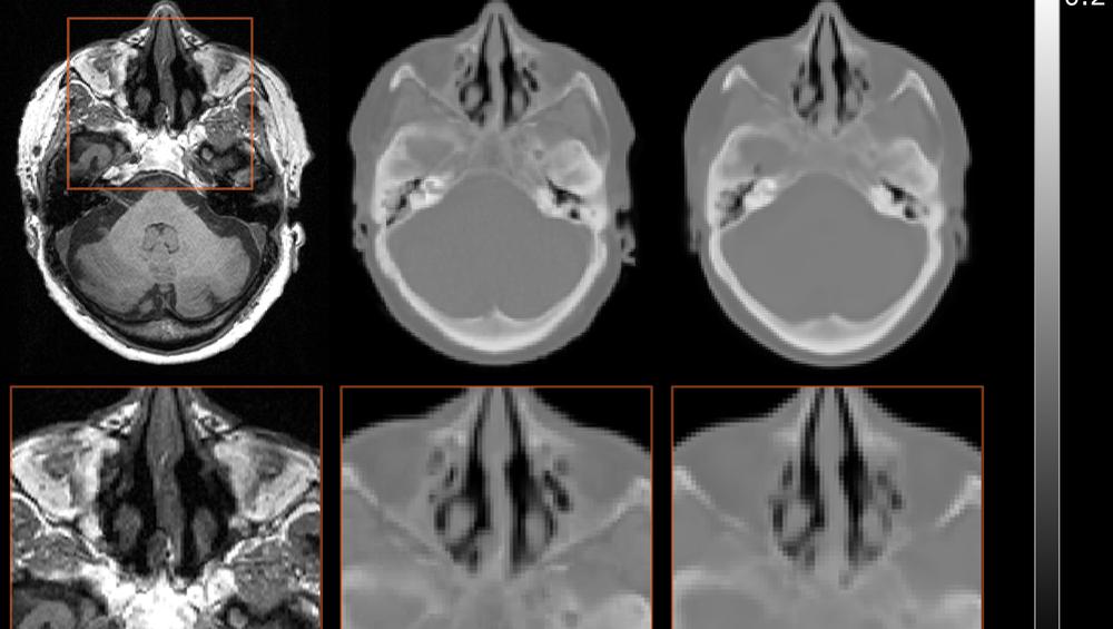 Et MR-bilde som viser bløtdeler med stor kontrast, er standard for de fleste hjerneundersøkelser. Men knokler gir ikke noe signal på MR, og framstår derfor svarte. Hvis man skal ha et reelt bilde med knokler for å lage stråleplaner eller til PET/MR, må man bruke en CT-skanning.