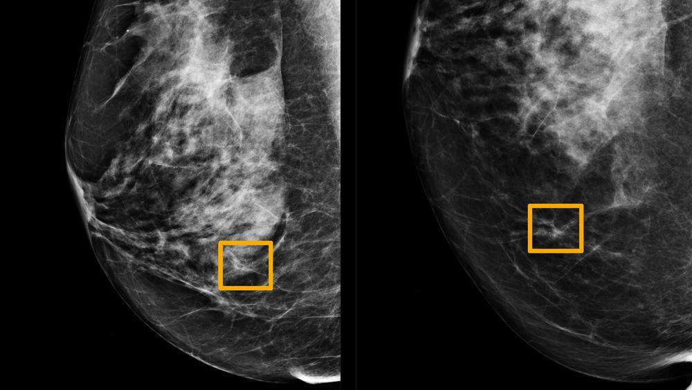 De gule boksene indikerer hvor kunstig intelligens har funnet kreftceller i brystvev.