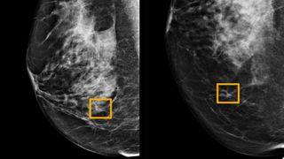 Google har utviklet kunstig intelligens som gjenkjenner brystkreft bedre enn radiologer