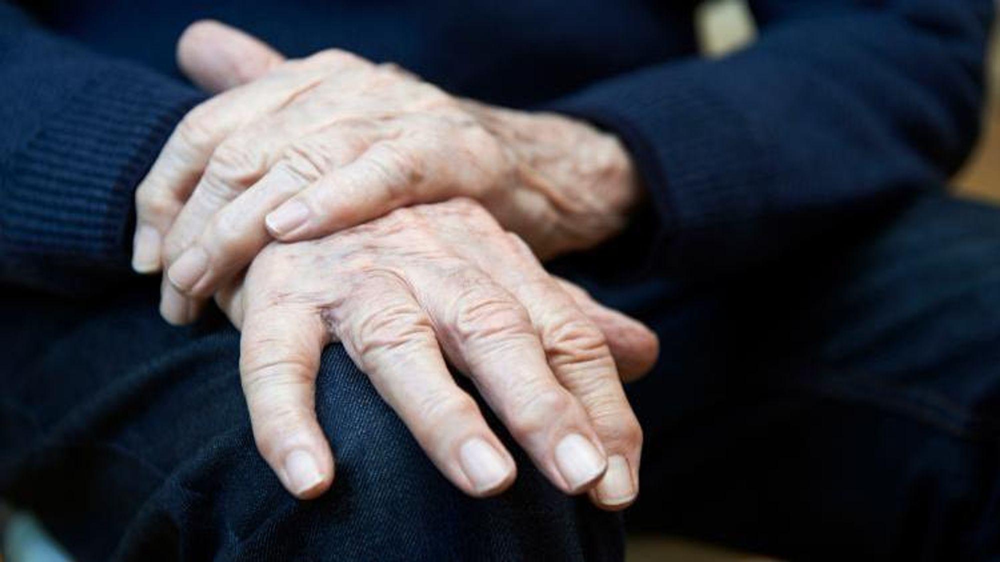 Når pasienter med Parkinsons sykdom får den karakteristiske skjelvingen, har skaden i hjernen allerede skjedd.