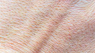 3D-printet hud kan erstatte dyreforsøk
