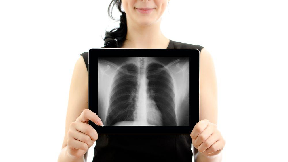 Få svar på fem spørsmål om røntgen.