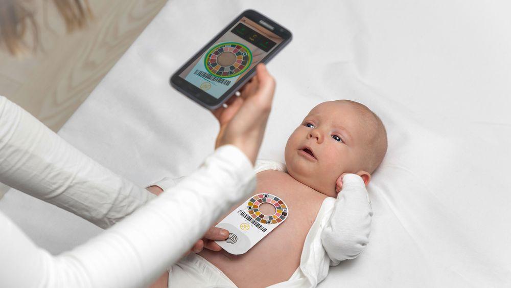 Enkelt: En billig mobiltelefon og en kalibreringsplate er alt som trengs for å avsløre gulsott hos nyfødte.
