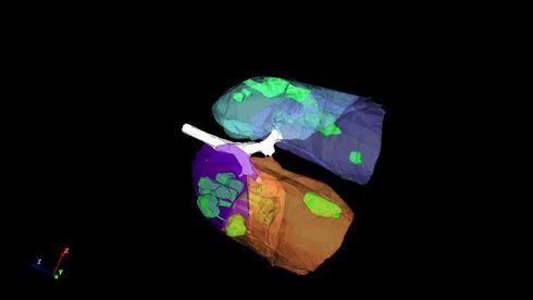 Kinesisk selskap finner koronasymptomer i CT-bilder på sekunder