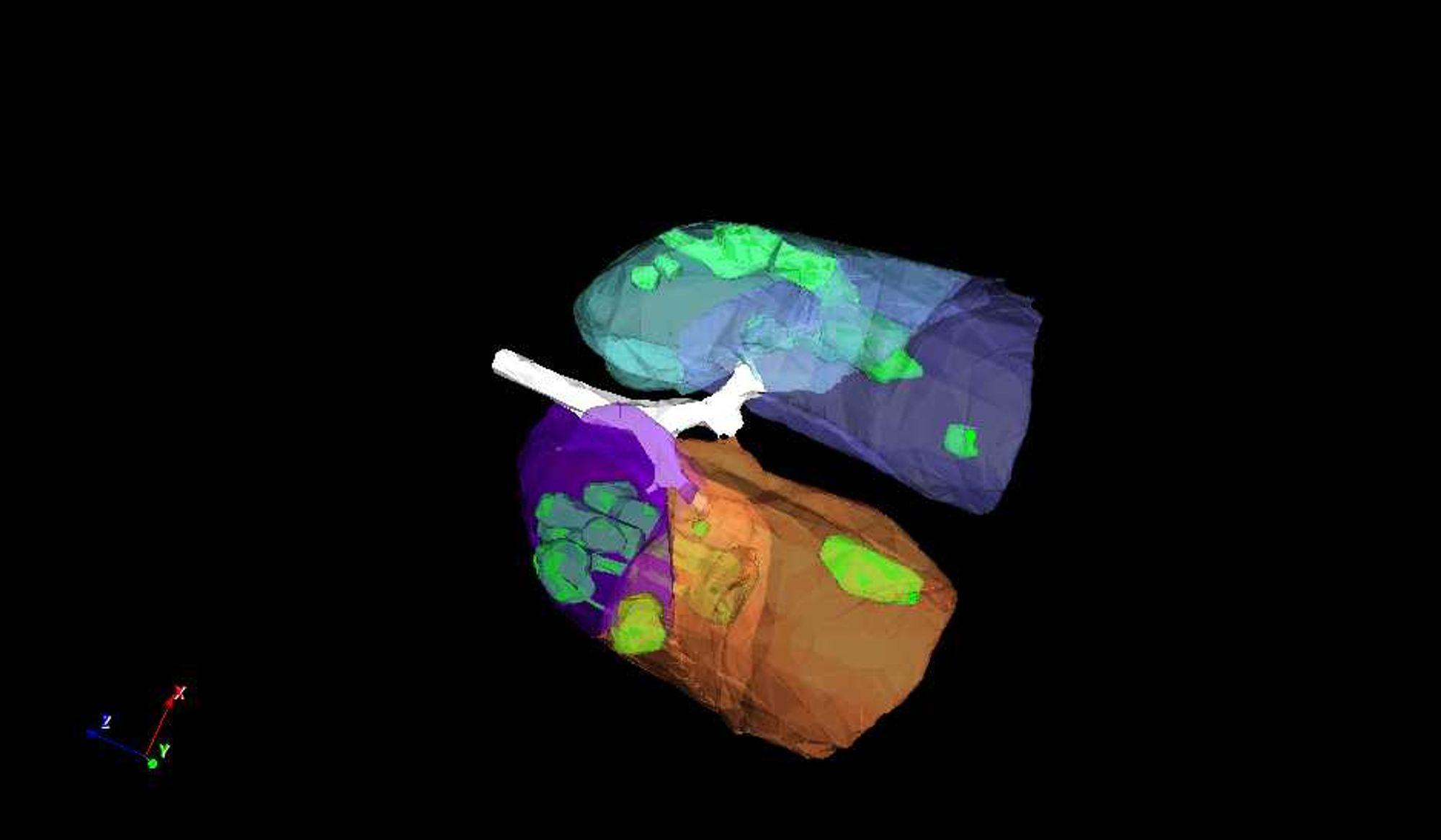 Alarm: Disse lungene er infisert av Covid-19. Det er dommen fra maskinopplært kunstig intelligens som på sekunder har analysert et CT-bilde.