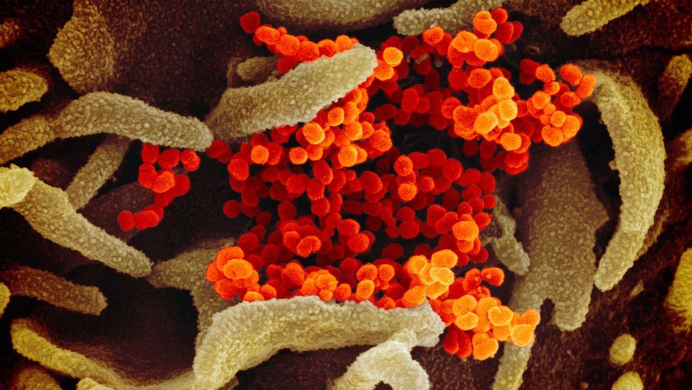 Ingen vet foreløpig sikkert hvor viruset kommer fra, men de fleste forskere avviser teorien framsatt i en NRK-artikkel søndag.