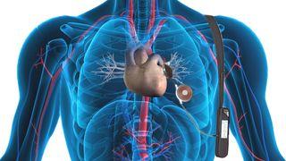Slik virker hjertepumpa som kan redde titusener av liv