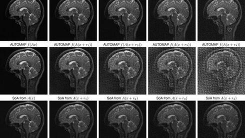 AI-fallgruve: «Deep learning» kan utviske svulster i MR-skanning