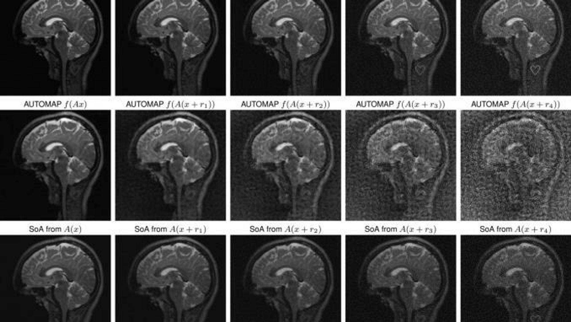 Kunstig intelligens kan «utviske» svulster i MR-skanning