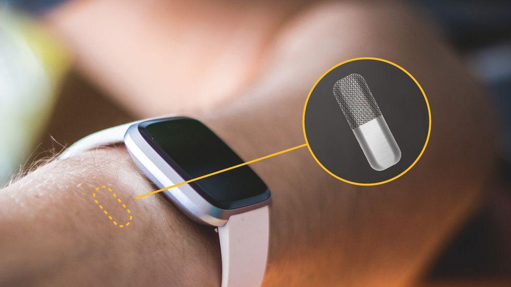 Dagens sensor fra Lifecare skal under huden ved håndleddet. Nå utvikler selskapet en variant, basert på samme prinsipp, som skal inn i bukhulen og være en del av en kunstig bukspyttkjertel.
