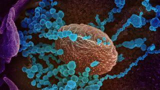 Koronavaksiner bruker revolusjonerende teknologi:Trenger inn i cellene og overtar produksjonssystemet – akkurat som virus