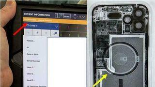 Skjerm og røntgenbilde av iphone 12