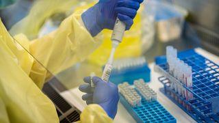 Ny metode finner mutert virus mye raskere