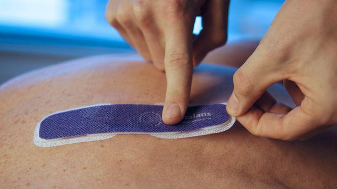 Norsk smartplaster kan overvåke væske- og saltbalansen – Bedre for pasienten og billigere for helsevesenet