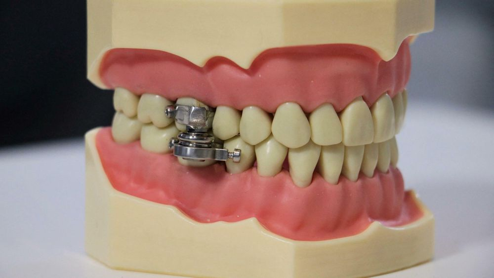 En tannlege setter bøyler på kinntennene på hver side av over- og underkjeven. Kraftige magneter er montert på bøylene, og dermed er kjeven lukket og kan bare åpnes noen få millimeter.