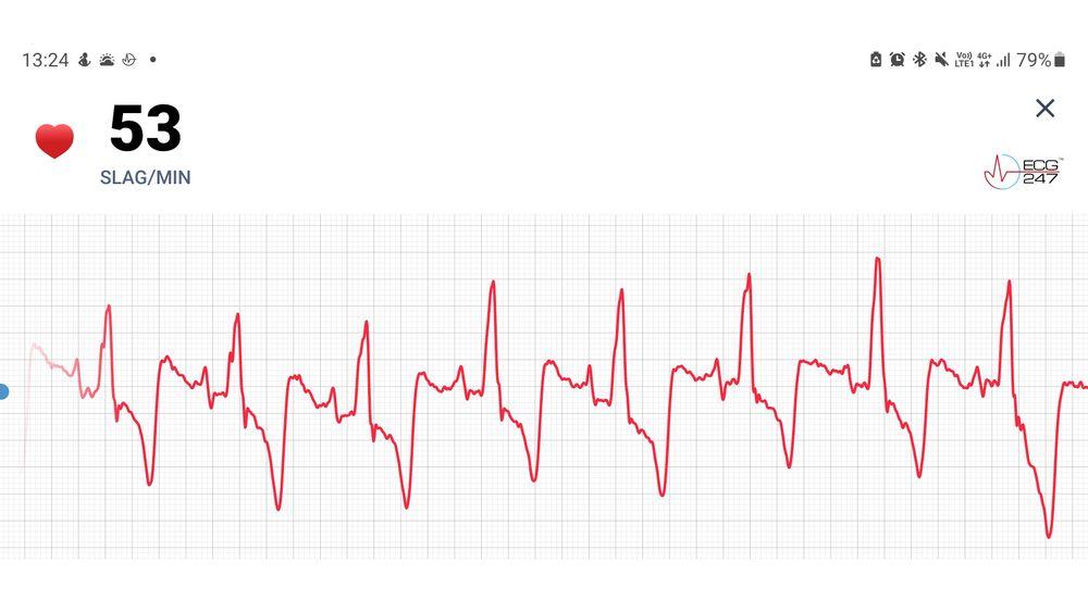 Alt vel: Mesteparten av tiden ser EKG-ene ut slik. Det betyr jevn puls og alt vel. Men skytjenesten gjør mange andre analyser som kan avsløre flere ulike typer arytmi. Slik som et betydelig antall dobbeltslag når jeg sover.