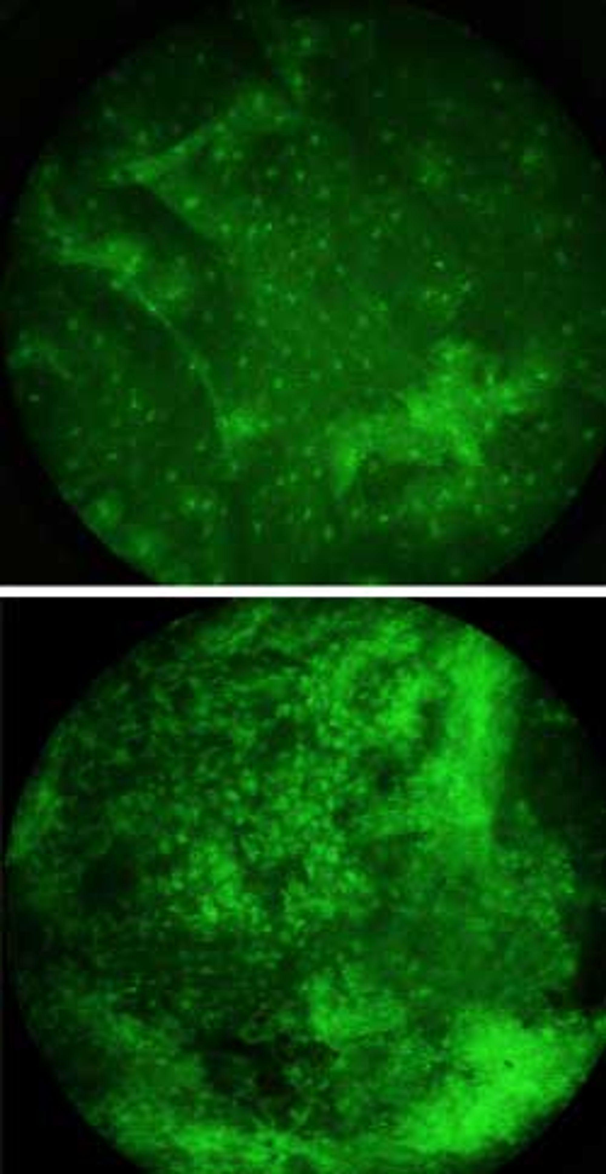 Friske celler sammenliknet med kreftceller