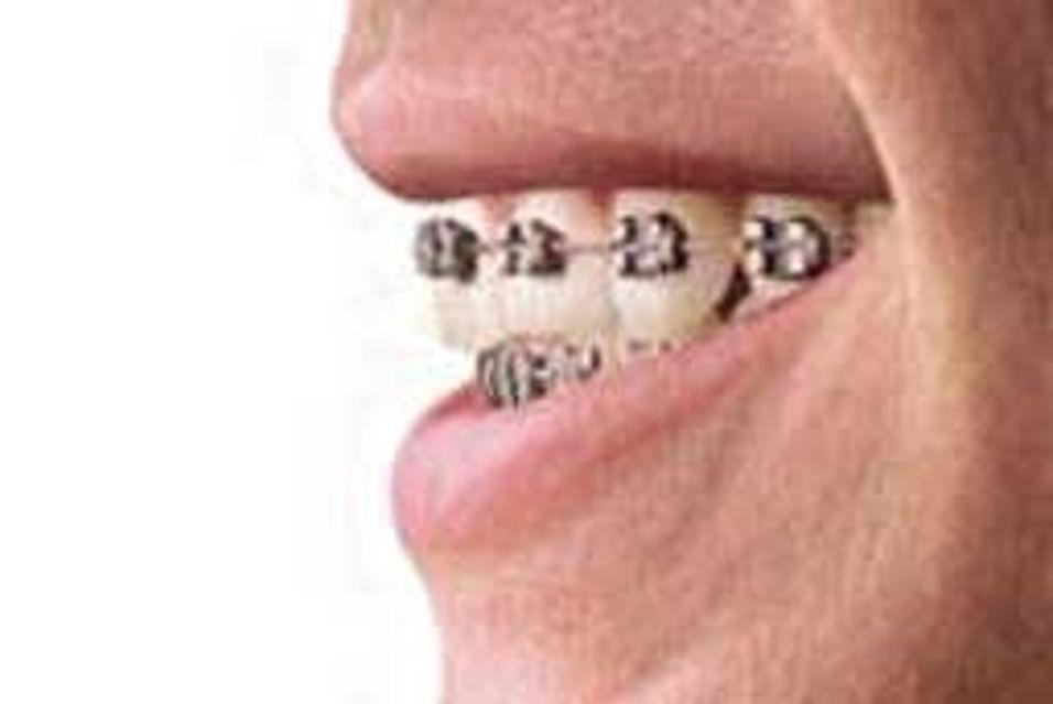 Fikk mobilsamtaler i tannreguleringen