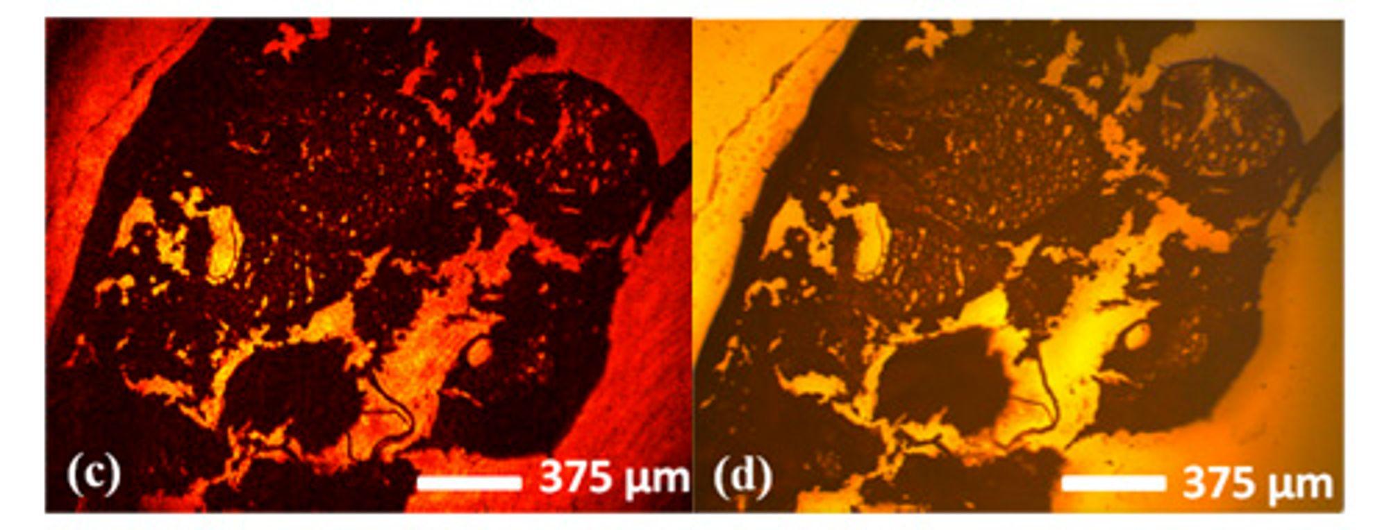 Til venstre ser vi et hologram tatt med det nye mikroskopet og deretter prosessert med programvare. Til høyre et bilde tatt gjennom vanlig mikroskop. Motivet her er hudceller.